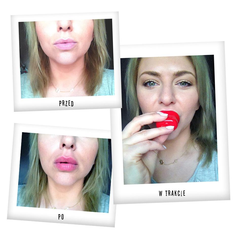 Byc Jak Kylie Jenner Test Urzadzenia Do Powiekszania Ust Allegro Pl